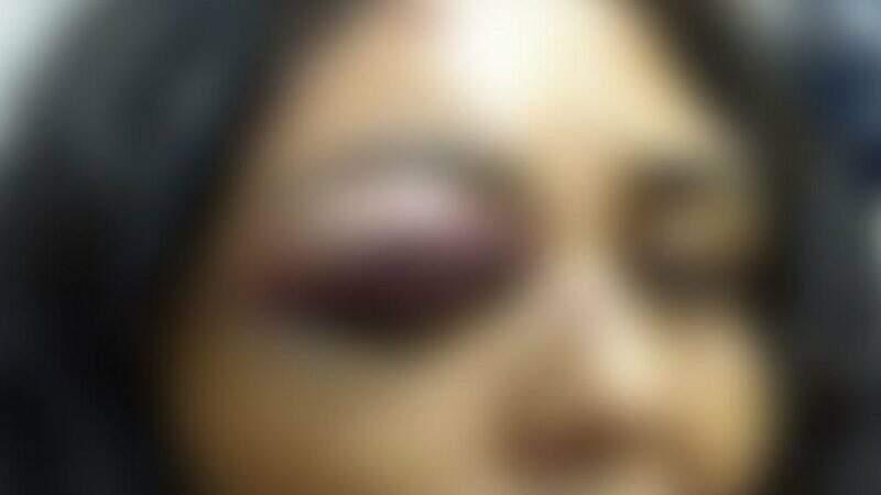 Mulher teve ferimentos no rosto e precisou de atendimento médico